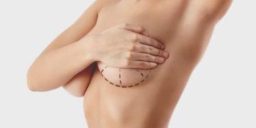 ¡Aprende a cuidar tu Mamoplastia!