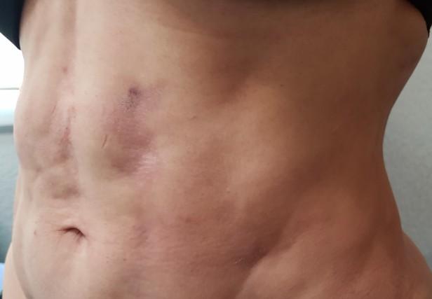 procedimientos y tratamientos con láser, procedimientos mamarios, procedimientos corporales, cirugía de busto o senos, medellín, colombia, cirujano plástico medellin, cirujano plástico, www.clinicalaser.com.co