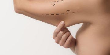 ¿Sabías que existe una cirugía que te ayuda a mejorar el aspecto de tus brazos?