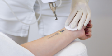 Elimina ese tatuaje que ya no te gusta, esas manchas o rejuvenece tu rostro con el Pico-láser