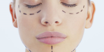 Algunas cosas que debes saber sobre la cirugía facial