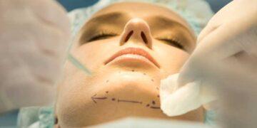Aumento significativo de las cirugías de mentón o mentoplastias